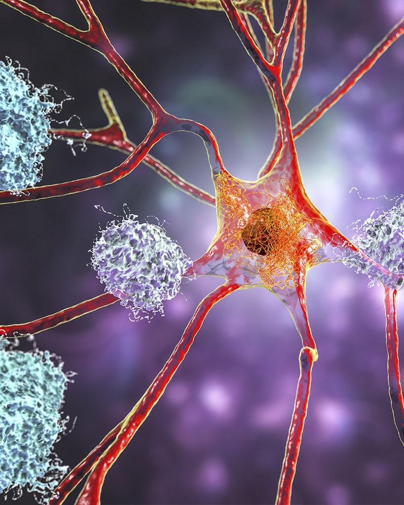 Neuroregeneration